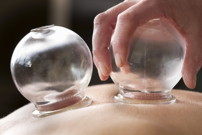 cupping muscle therapy marblehead ma